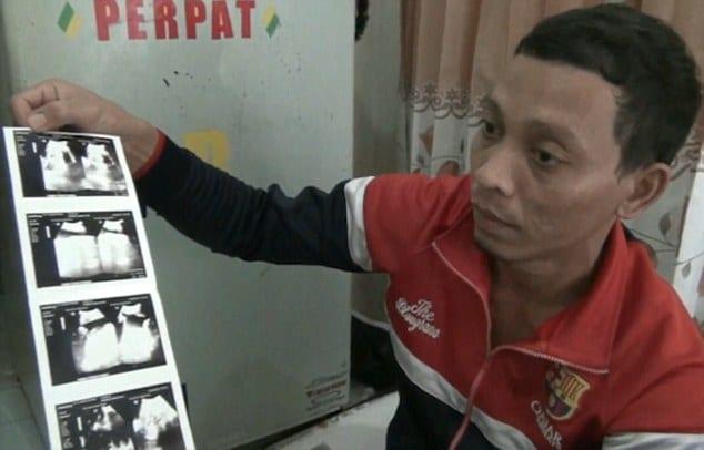 В Индонезии родился мальчик с двумя лицами